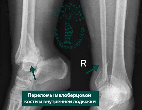 Перелом малоберцовой кости признаки