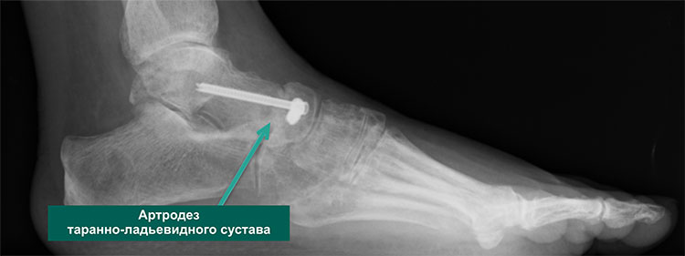 артродез таранно-ладьевидного сустава