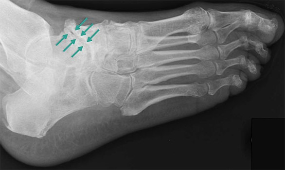 признаки остеоартроза таранно-ладьевидного сустава