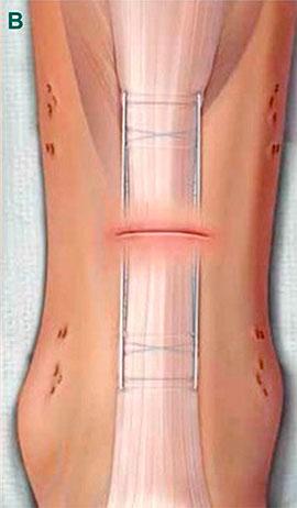 ушивание раны ноги