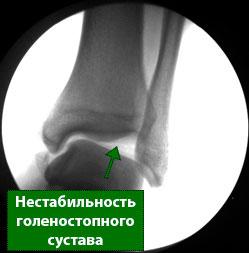 рентген нестабильность голеностопа