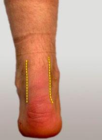 разрывом правого ахиллова сухожилия