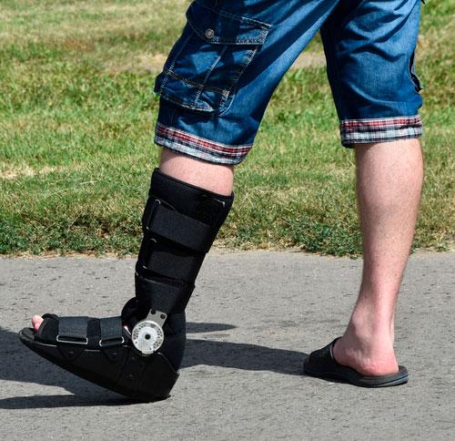 ботинок при переломе наружной лодыжки