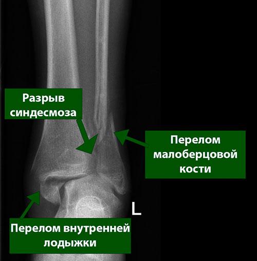 двухлодыжечный перелом и повреждение синдесмоза