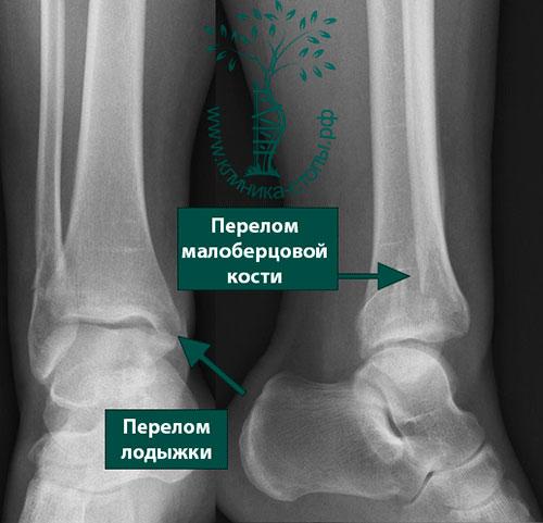 переломовывихи костей стопы