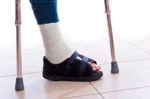 консервативное лечение при переломе лодыжек