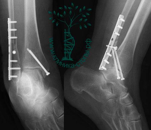 металлоконструкции при переломе кости