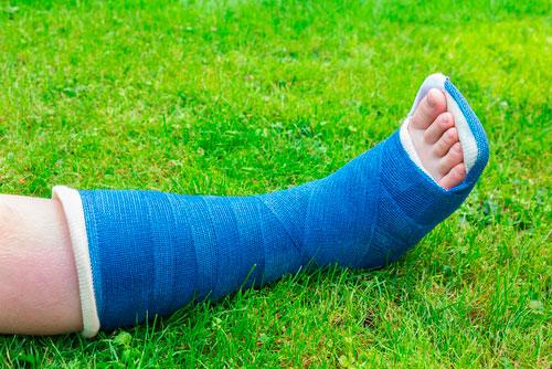 лечение переломов лодыжек пластиковым гипсом