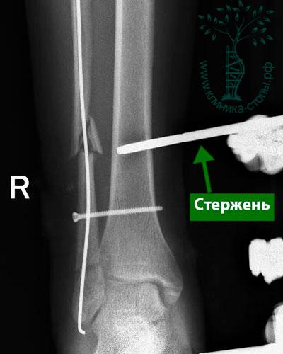 Операция при переломе ноги