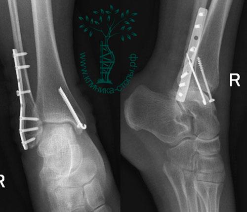 остеосинтез чрезсиндесмозного перелом малоберцовой кости и внутренней лодыжки