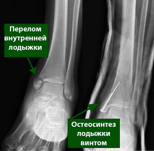 остеосинтез перелома внутренней лодыжки