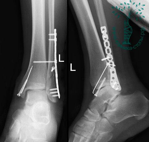 остеосинтез переломов лодыжек пластинами и винтами и синдесоза винтом
