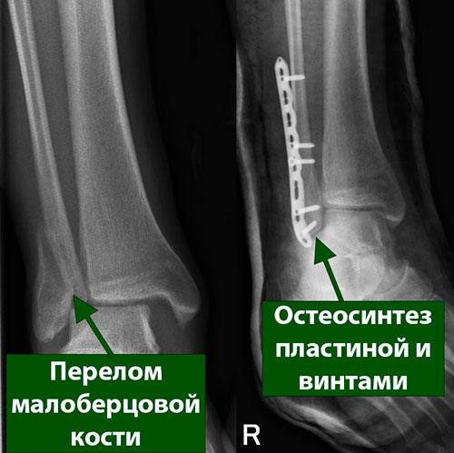 перелом малоберцовой кости остеосинтез пластиной