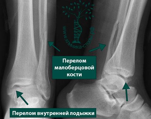 закрытый перелом нижней трети левой малоберцовой кости