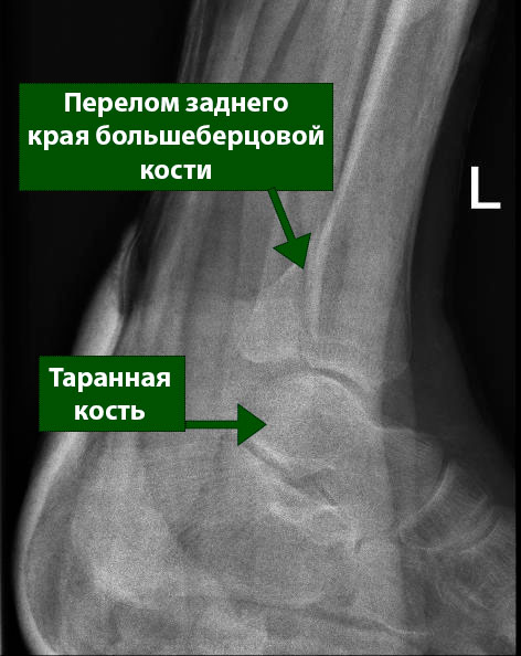 перелом заднего края большеберцовой кости