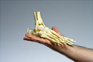 переломы в области голеностопного сустава