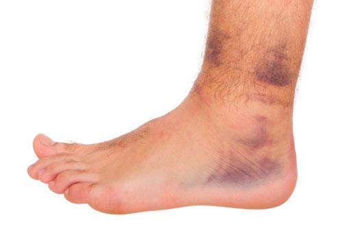 симптомы перелома лодыжек