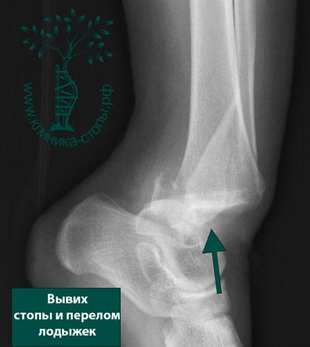 Переломы наружной лодыжки со смещением отломков