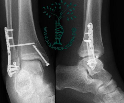 оперативное лечение переломов