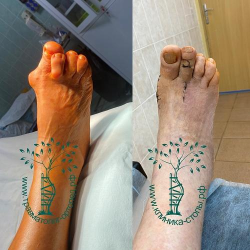 результат операции молоткообразные пальцы