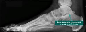 рентген артроза подтаранного сустава