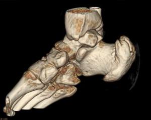 3D КТ-реконструкция голеностопного сустава