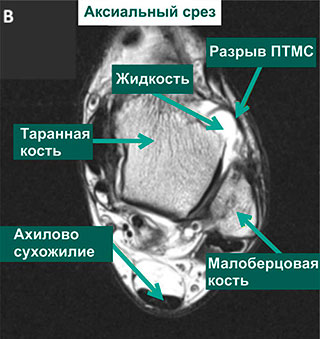МР-томограммы голеностопа