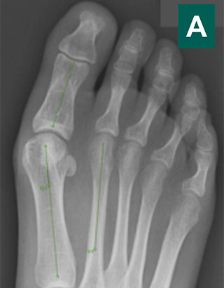 Рентген после операции на стопах