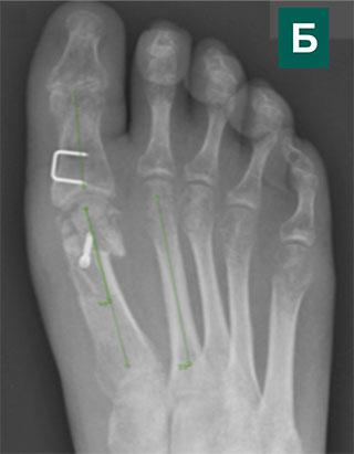 Рентген после операции по поводу косточек на стопах