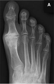Рентгенограммы до артродеза 1-го ПФС