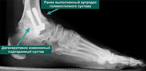Рентгенограмма стопы пациента