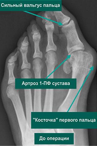 длительно существующая деформация 1-го пальца