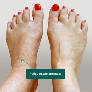 артродез суставов среднего отдела стопы