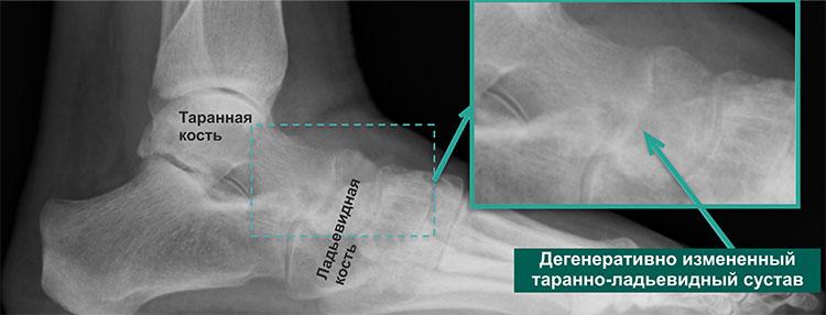 Предоперационная рентгенограмма стопы