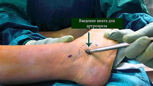 артроэрез ход операции