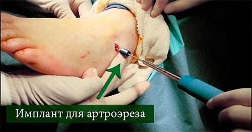 Артроэрез операция