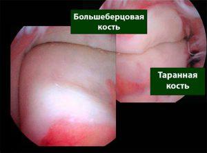 артросокпия голеностопного сустава