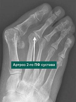 Артроз 2-го плсюне фалангового сустава