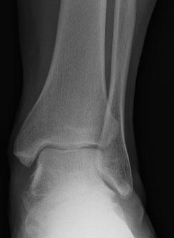 рентгенограмма посттравматического остеоартроза голеностопа