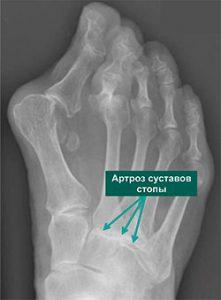Артроз суставов среднего отдела стопы