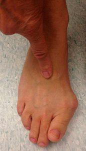 артроз суставов пальцев стопы