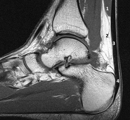 МР-анатомия ахиллова сухожилия