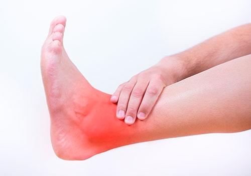 острая боль при артрозе голеностопа