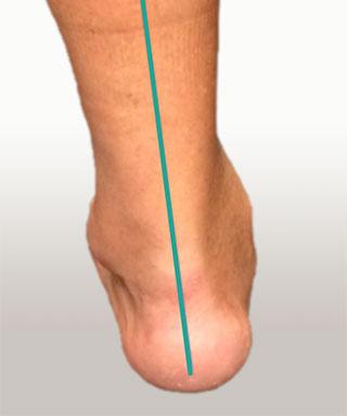 варусная деформация заднего отдела стопы
