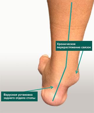 повреждение наружных боковых связок голеностопа
