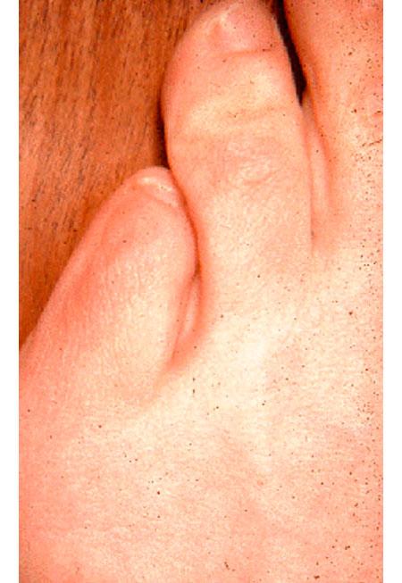Деформация 5 пальца