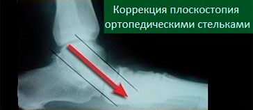 МРТ коррекции плоскостопия