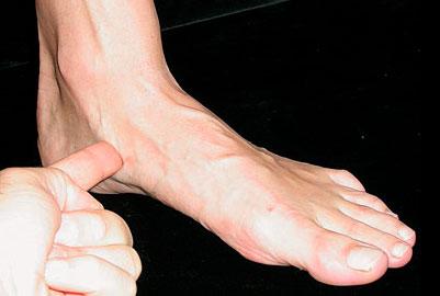 Дисфункция сухожилия задней большеберцовой мышцы