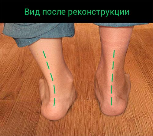 До операции на плоскостопии, рис. 2