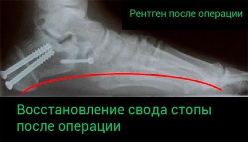 После операции для исправления плоскостопия